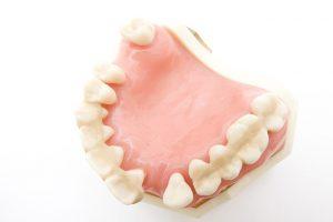 歯周病の恐ろしさ