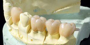 入れ歯とブリッジの違いについて