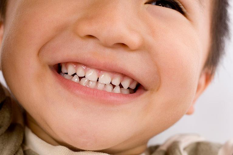 お子さまの歯並びでお悩みの親御さまへ